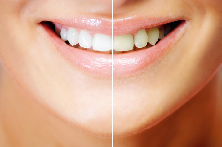 Teeth Whitening Offered by Dentist in Simi Valley
