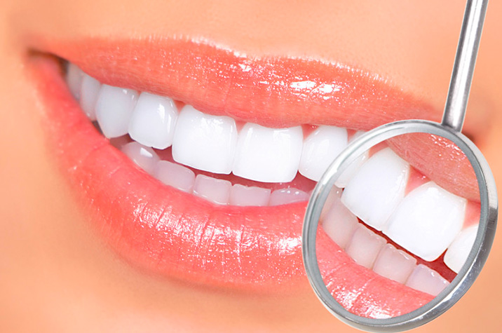 Can I Have Teeth Whitening If I Have Crowns, Veneers, or Implants?