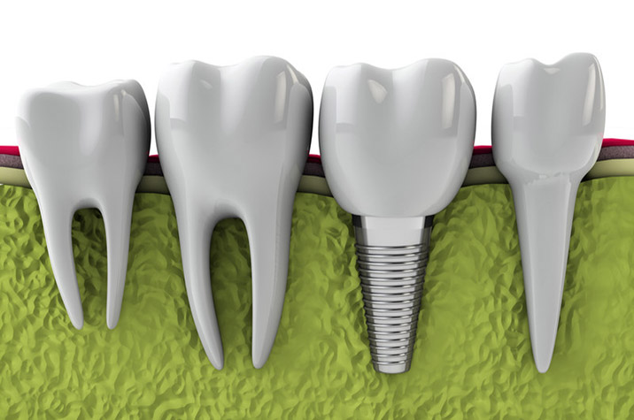 Dental Implants in Simi Valley Can Boost Your Oral and Overall Health