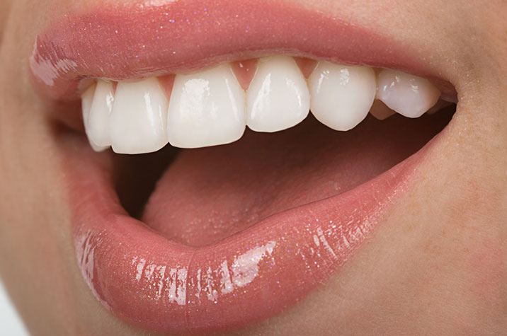 Am I a candidate for veneers?