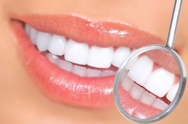 Laser for Gingival Therapy simi valley