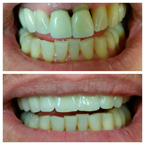 Before and After Dental Cases, Smile Gallery Dentist in Simi